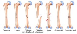 Types and symptoms of bone fractures and their treatment methods